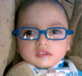 near drowning and hyperbaric oxgen